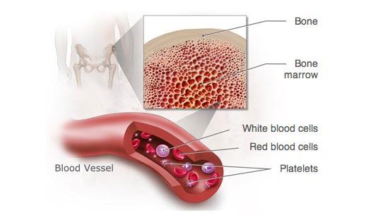 ghép tế bào gốc điều trị ung thư