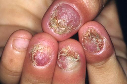 nhiễm nấm móng tay