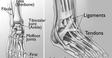 viêm khớp bàn cổ chân
